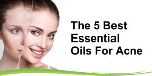 the 5 best essential oils for acne header