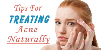 Tips For Treating Your Acne Naturally