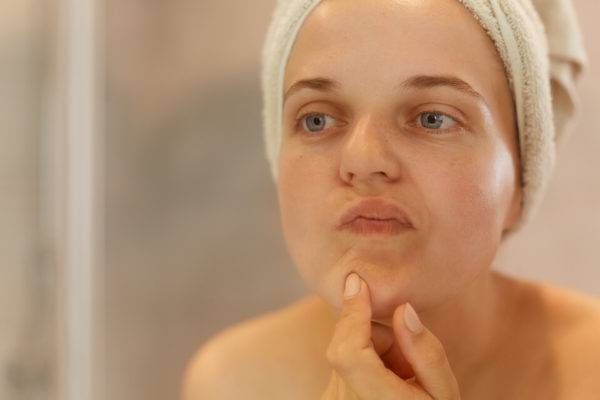 woman checking face for acne