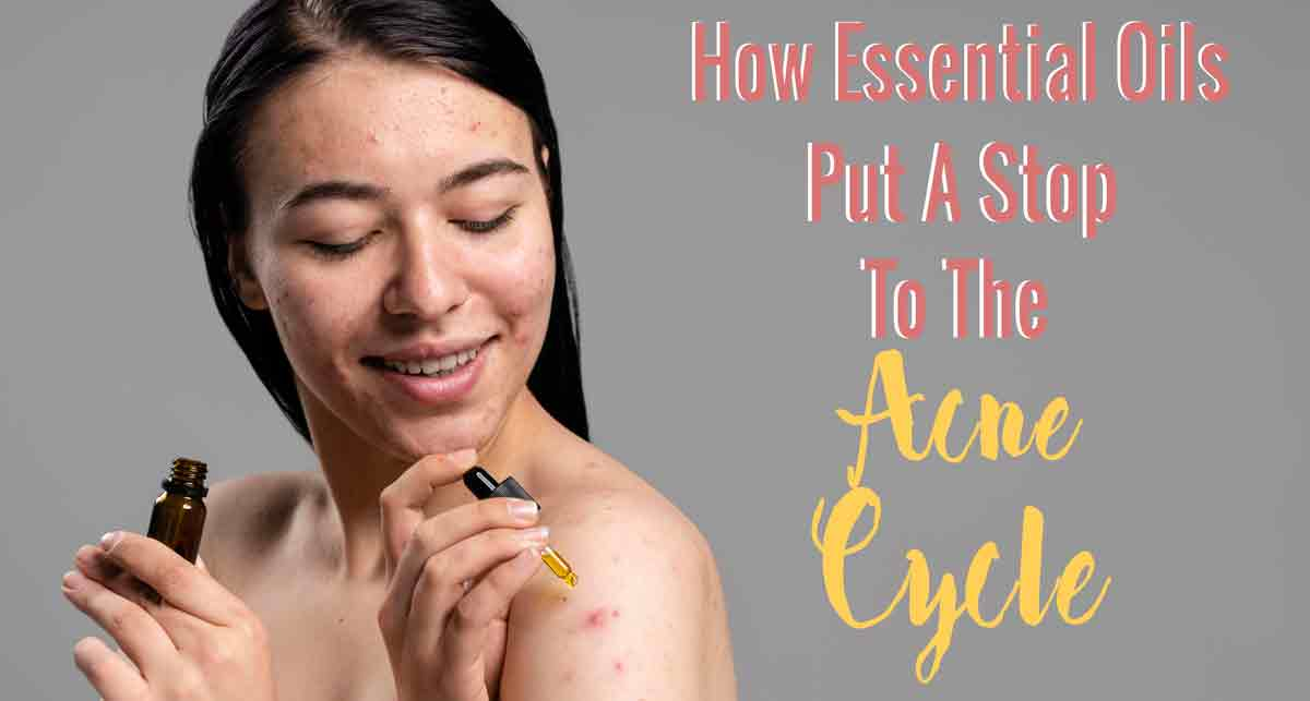 how to use essential oils to stop acne